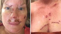 Atteinte d'un cancer de la peau, elle vous met en garde à sa façon