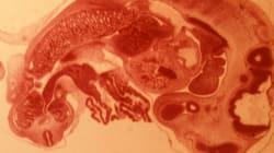 Επιστήμονες στις ΗΠΑ προσπαθούν να αναπτύξουν ανθρώπινα όργανα μέσα σε