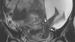 자궁 밖으로 나온 태아의 발 사진은