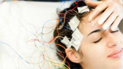 Crise, stigmatisation... Comprendre l'épilepsie en huit