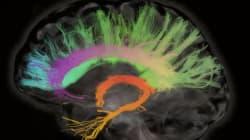 Καναδοί επιστήμονες υποστηρίζουν ότι ο εγκεφάλος συνεχίζει να λειτουργεί για τουλάχιστον 10 λεπτά μετά τον