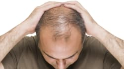 Losing My Hair: If I'm Not Bothered, Why Are