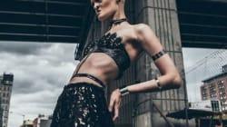 희귀 유전병 앓는 모델이 패션계를 놀라게