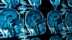 Η επιστήμη των νευροοικονομικών και η χρησιμότητά
