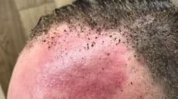 Il partage les photos de ses cheveux brûlés dans l'explosion de Parsons
