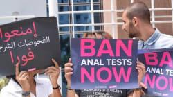 L'abolition du test anal n'est pas encore effective, a annoncé Mehdi Ben