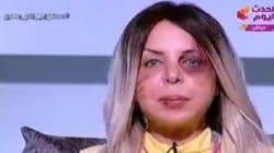 Violences conjugales: Cette présentatrice égyptienne apparue violentée à la