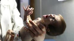 시리아의 참상을 고스란히 보여주는 아기의