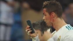 Le visage en sang, Cristiano Ronaldo se fait un
