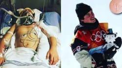 Jeux olympiques d'hiver 2018: ces deux photos d'un médaillé ont été prises à moins d'un an