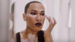 Cette mannequin atteinte de vitiligo est la nouvelle égérie d'une marque de