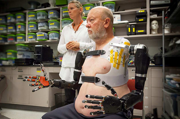 Double amputee controls two robotic arms with his mind