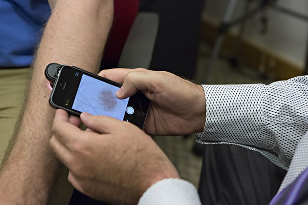 This smartphone app can detect skin cancer