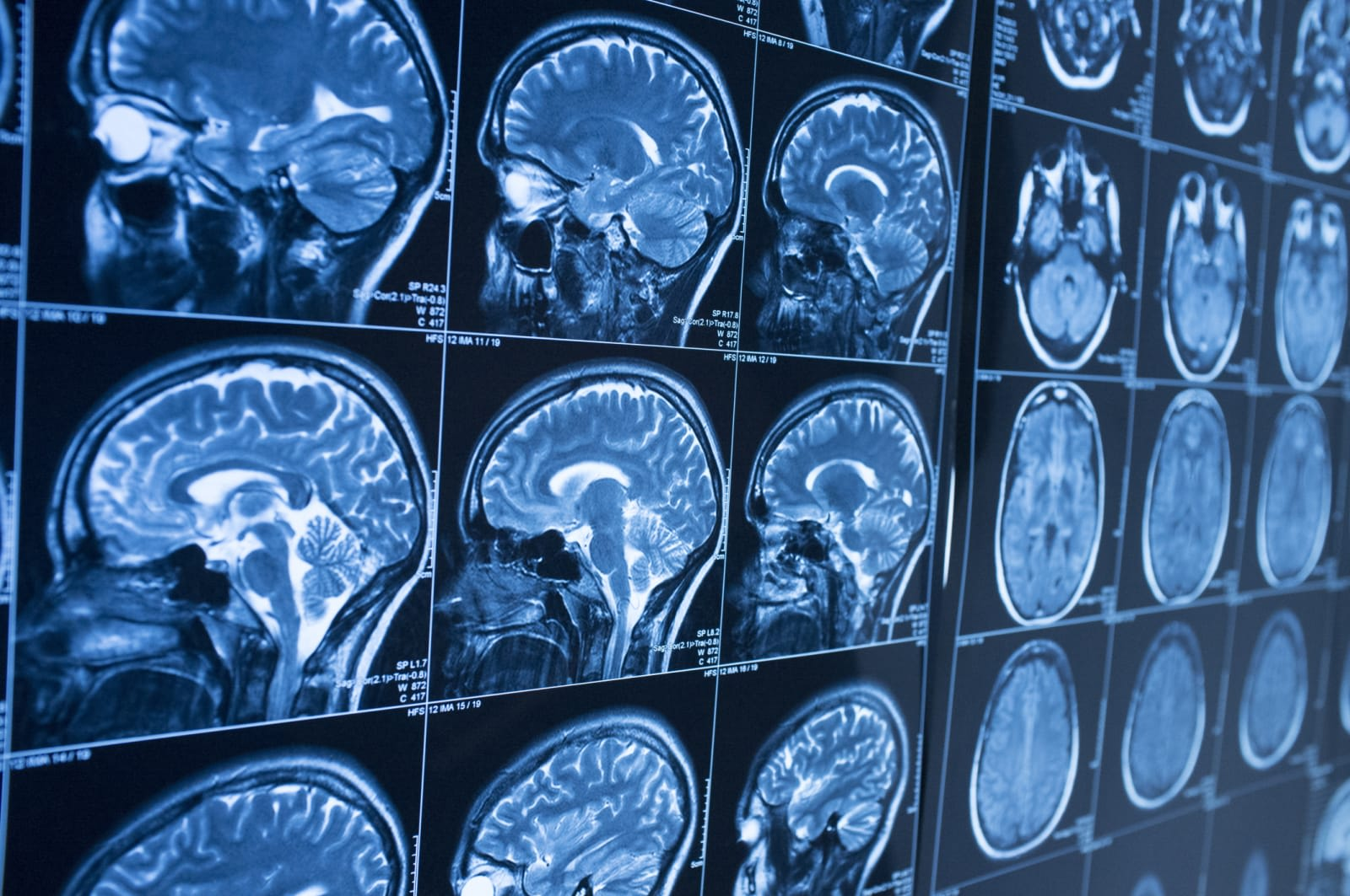 AI can detect Alzheimer's 10 years before symptoms show up