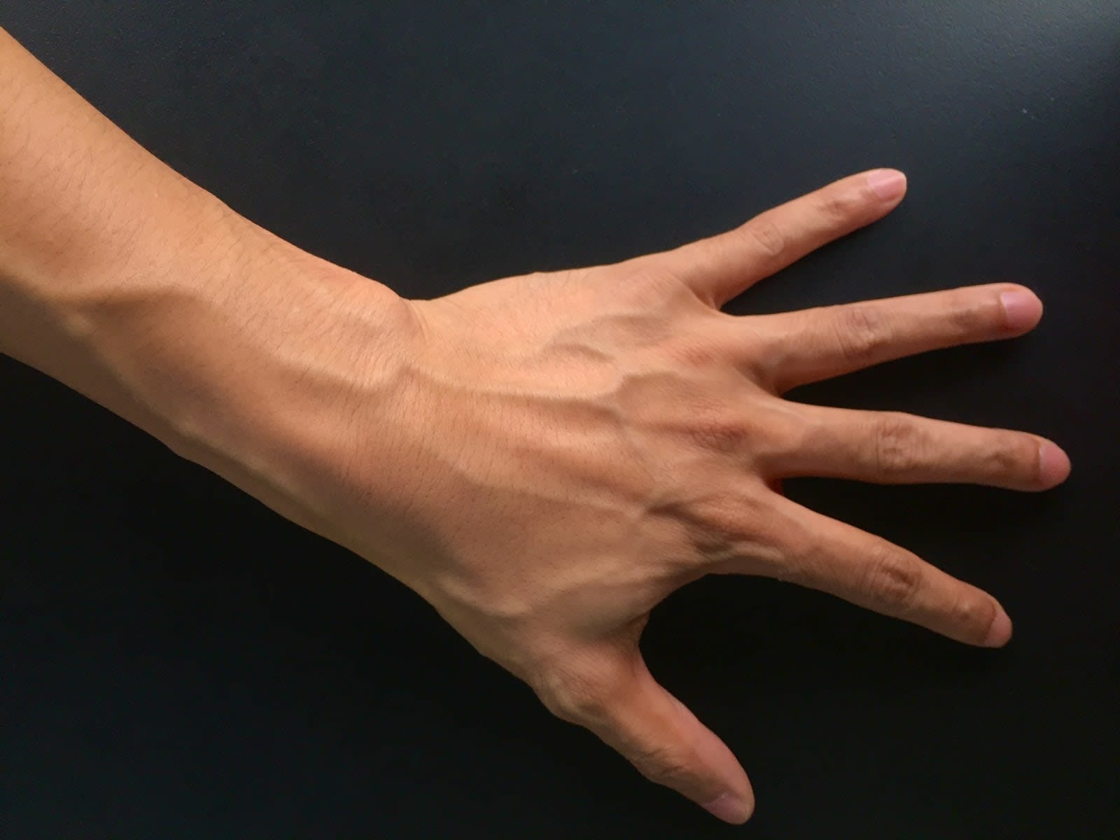 hackers defeat vein authentication by making a fake hand