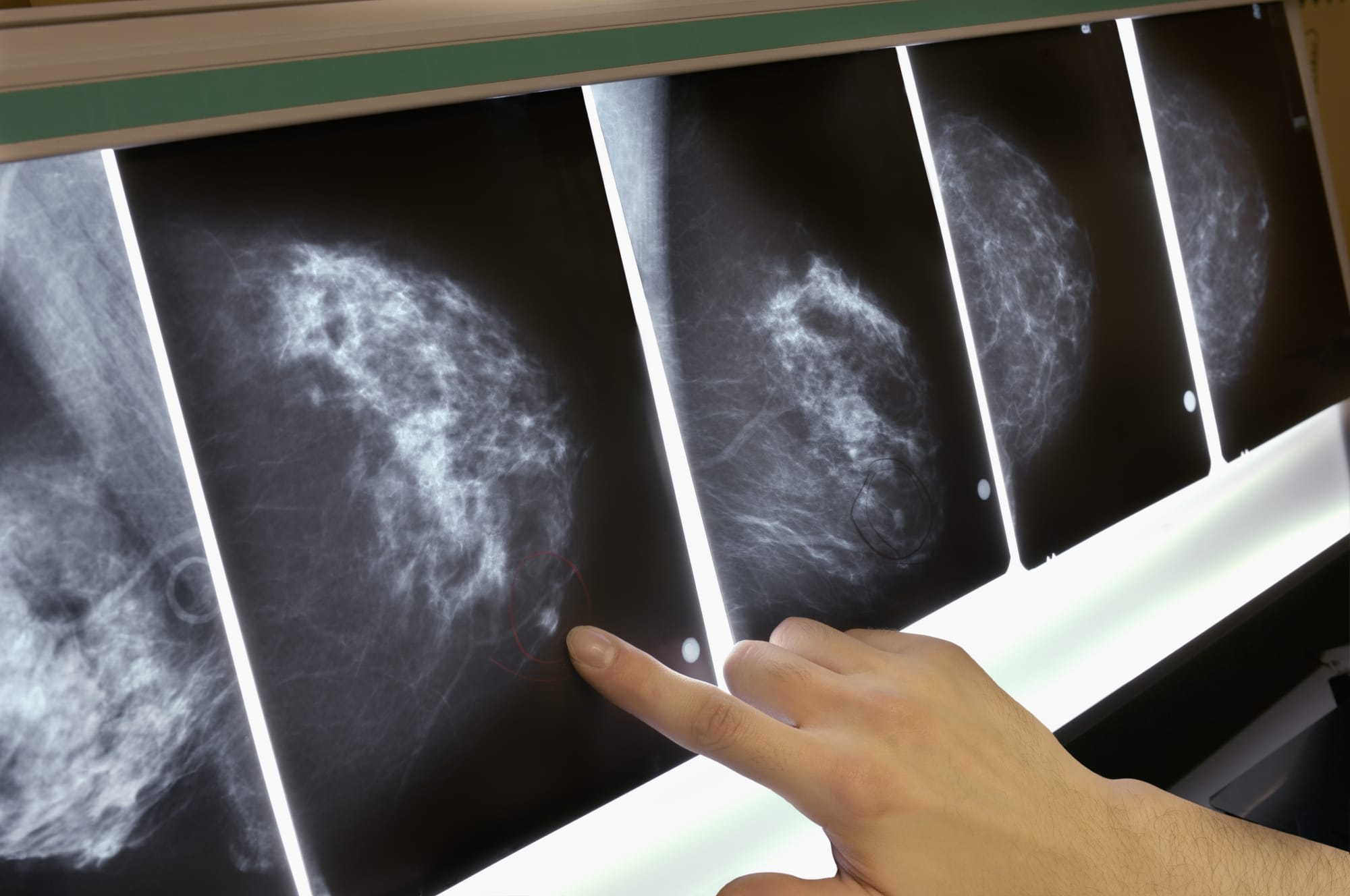 MIT AI model is significantly better at predicting breast cancer