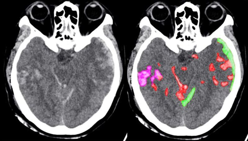 AI can help doctors spot brain hemorrhages faster