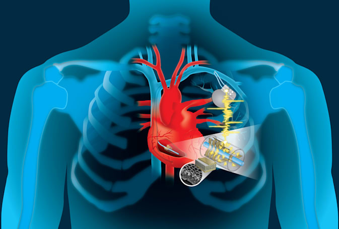 Self-charging pacemakers are powered by patients' heartbeats