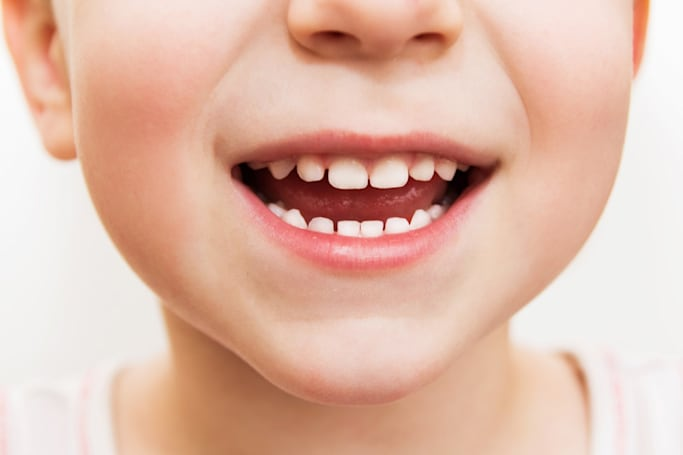 Baby tooth stem cells could regrow kids' dental tissue