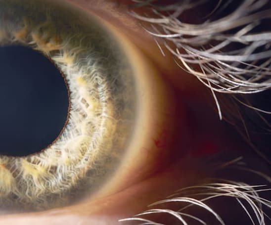 Researchers discover a 'partial workaround' for blindness