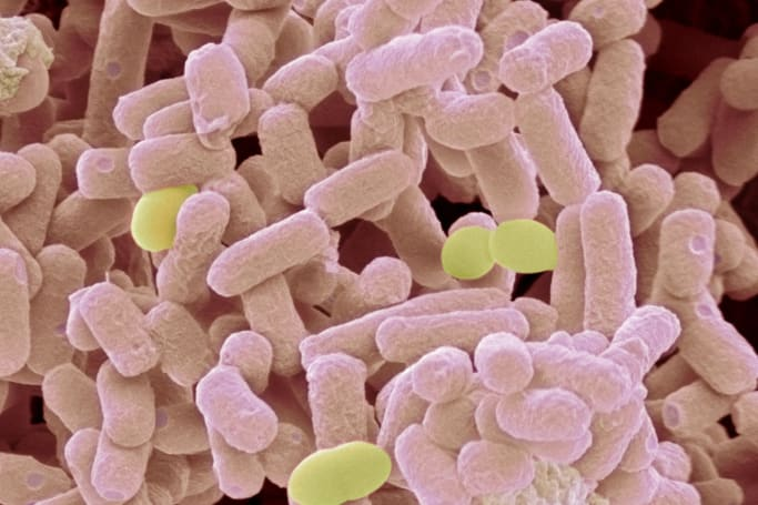 Scientists find bacteria resistant to last-ditch drug treatments