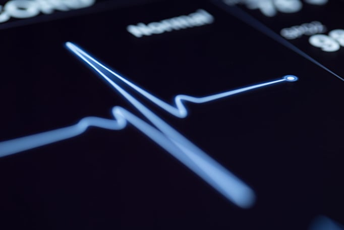 AI can predict heart attacks more accurately than doctors