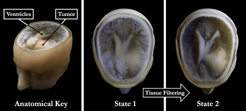 You'll soon be able to get a 3D printed model of your brain