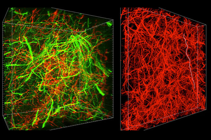 3D imaging helps map tiny connections in the brain
