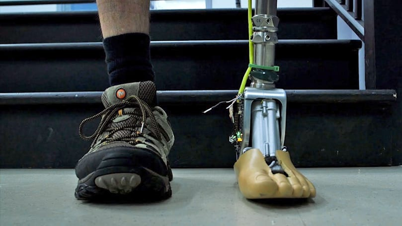 Smart prosthetic ankle can adapt to uneven ground