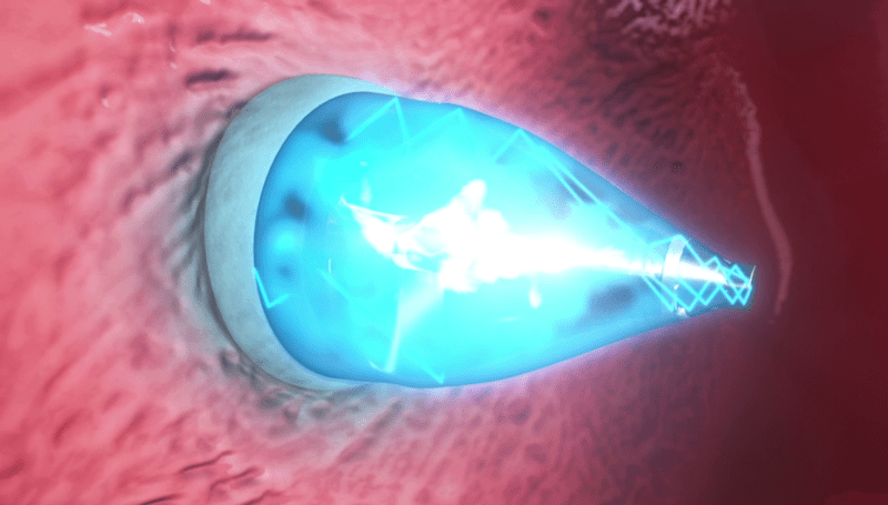 UV-light enabled catheter fixes heart defects without surgery