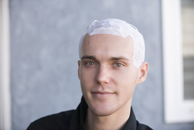 Electric skull cap helps brain cancer patients live longer