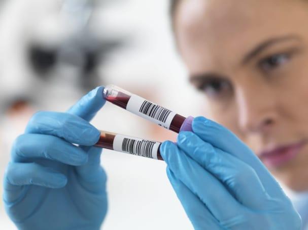 Scientists get closer to replicating human sperm
