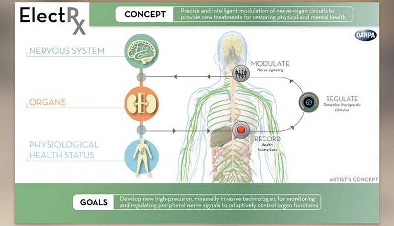 US researching implants that'll help your body and mind heal itself