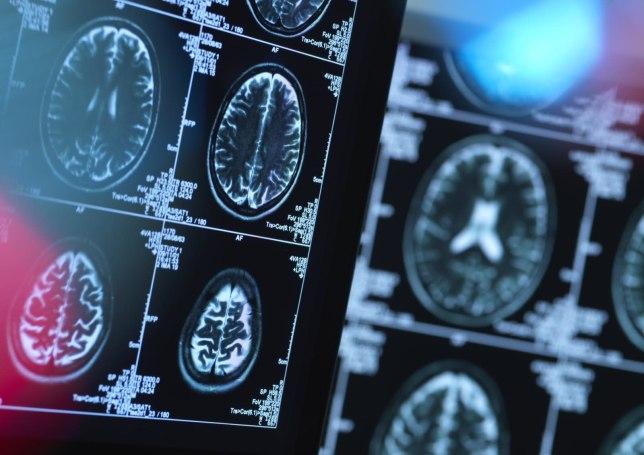IBM uses AI to predict progress of Huntington's disease symptoms
