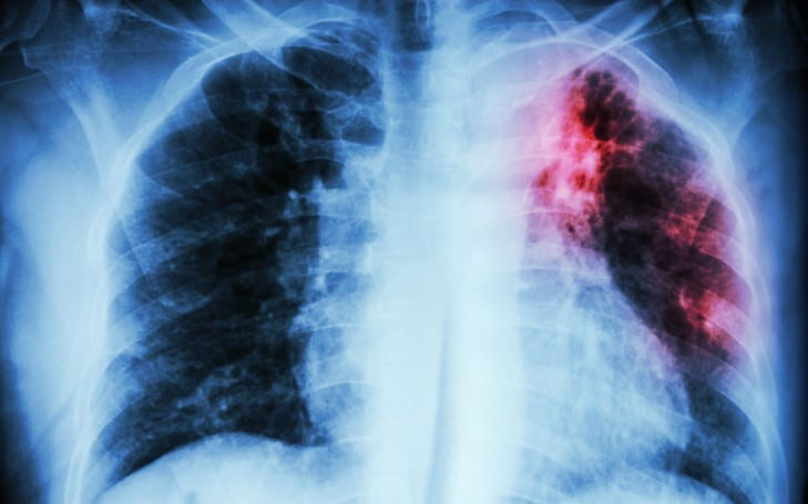 Blood-based TB test will provide a low-cost option for developing nations