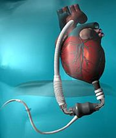 HeartMate II: the pulse-free artificial heart
