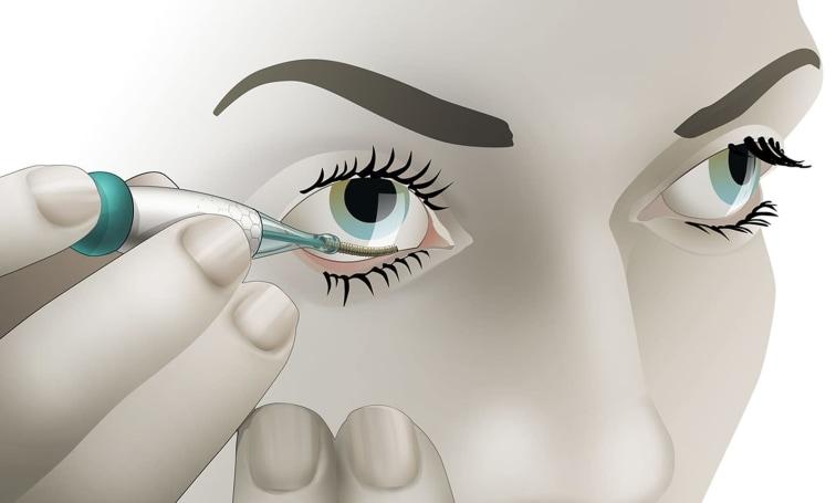 Eyelid glucose sensor might pick up where Verily left off