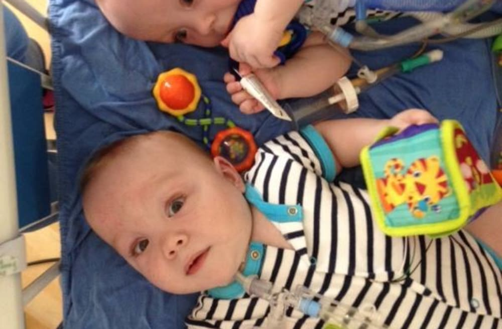 Formerly Conjoined Twins Celebrate Big Milestone Aol News