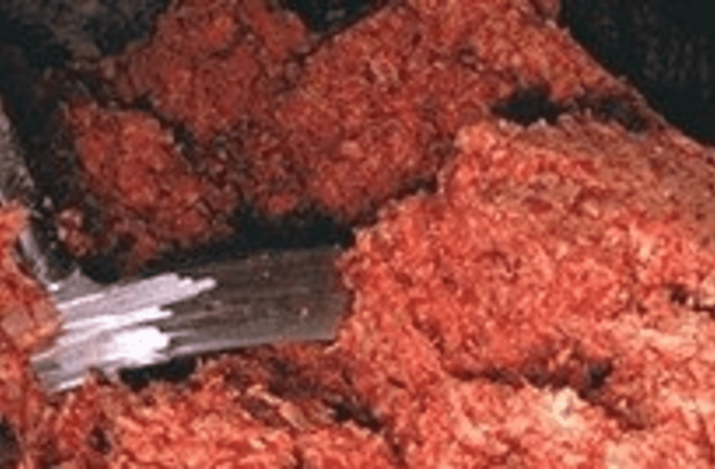 Creekstone Farms Recalls Ground Beef in 10 States Over E