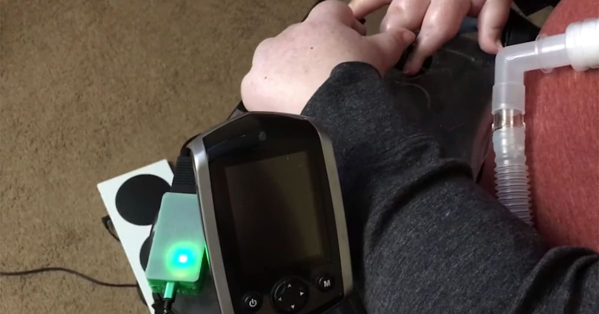 Adapter turns power wheelchairs into Xbox controllers 1