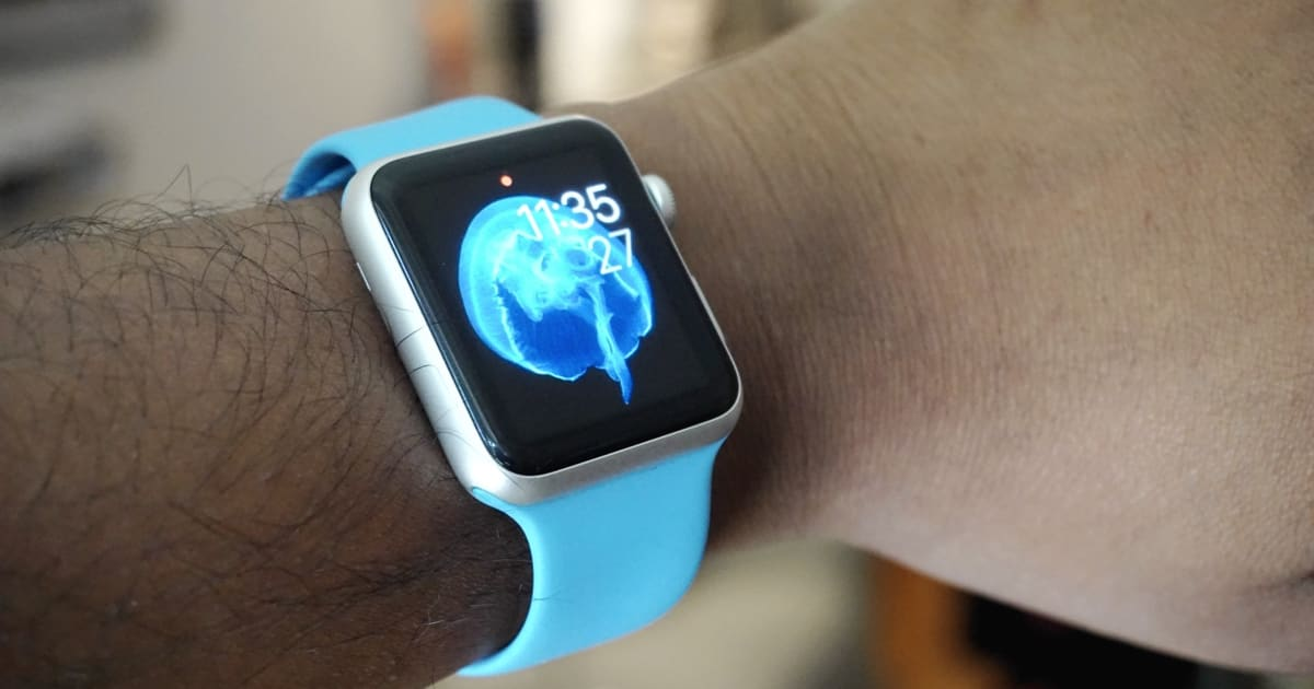 IPhone 6S Might Sport Animated Wallpapers Like Apple Watch