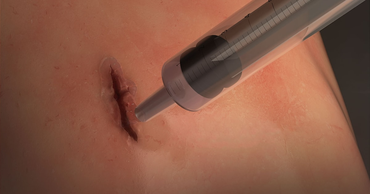 Researchers Create A Revolutionary Surgical Glue