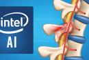 Intel 想靠 AI 來重連受損的脊髓神經