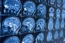 阿尔兹海默症可望借 AI 提早近 10 年被察觉
