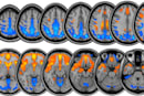 NASA's studying how zero gravity affects the brain