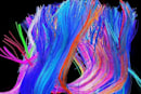 Human Connectome Project maps brain's circuitry, produces super trippy graphics
