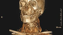 Philips super high-res CT scanner shows you from the inside