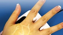 NYU medical center goes sci-fi, scans patients' palms