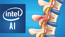 Intel wants to use AI to reconnect damaged spinal nerves