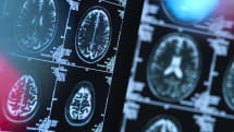 IBM uses AI to predict progress of Huntington's disease symptoms